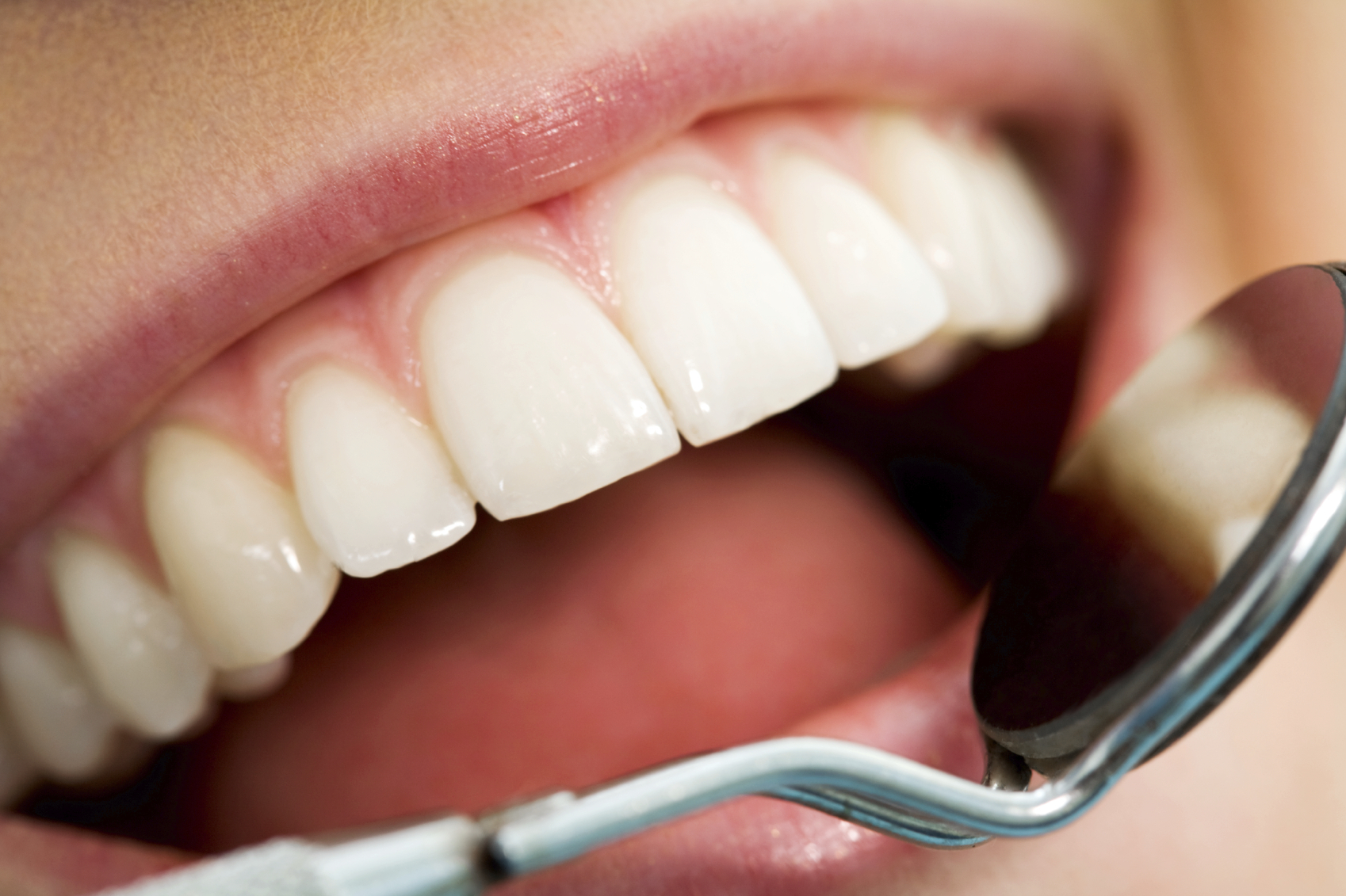 Individual Dental Insurance Plan - 4 Things to Check Before Buying